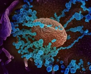 Coronavirus SARS-CoV-2 (Fuente: NIAID-RML)
